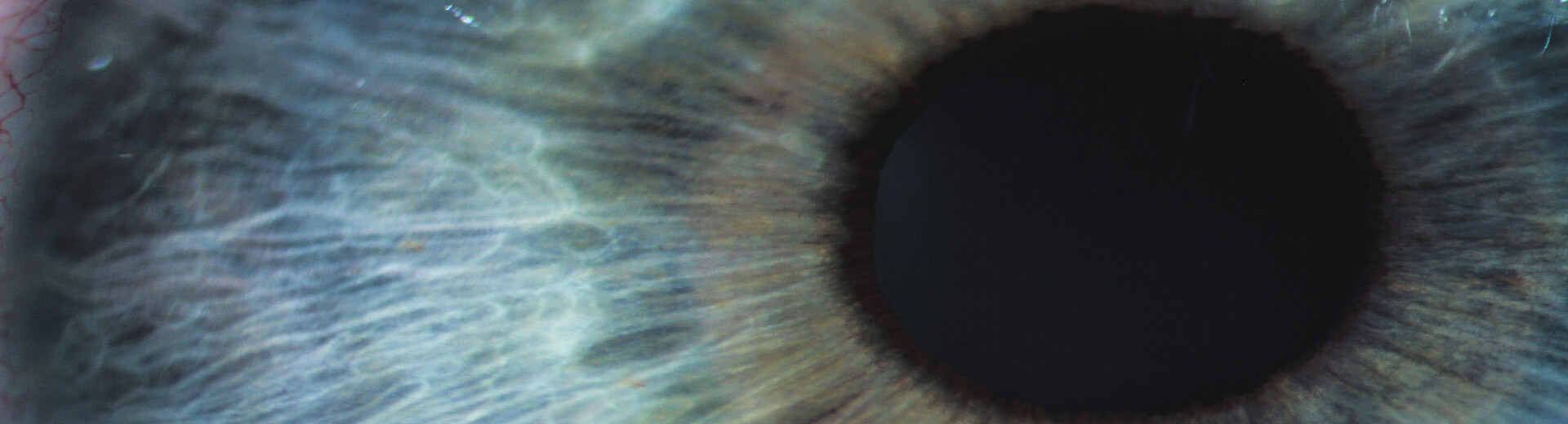 causes of low vision are you at risk