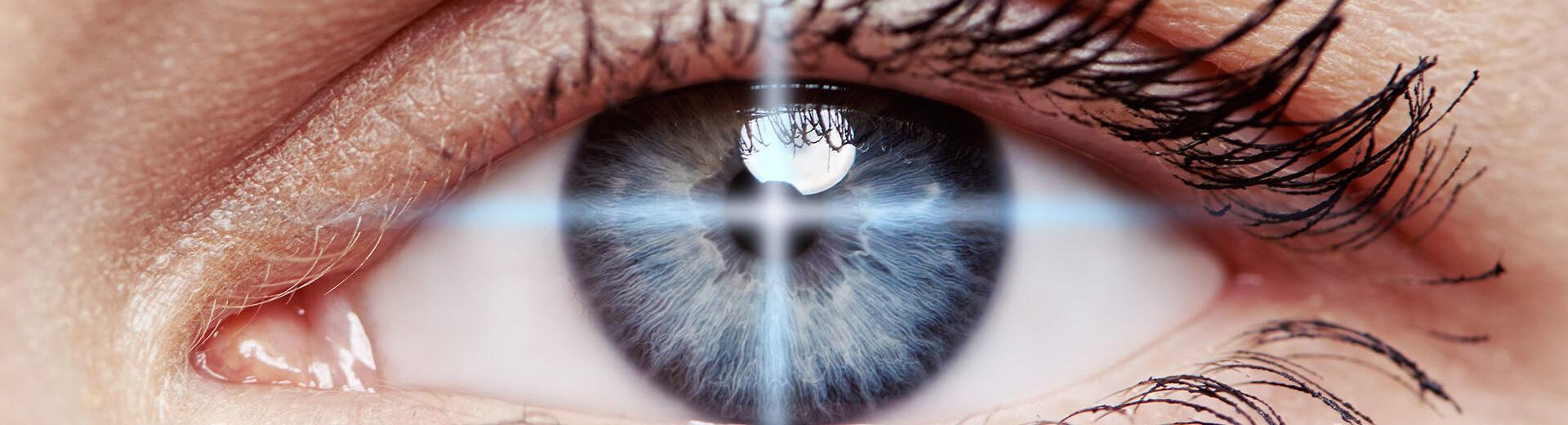 understanding prk laser eye surgery