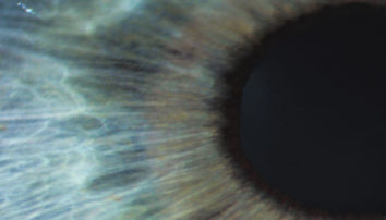 7 Causes of Low Vision: Are You at Risk?