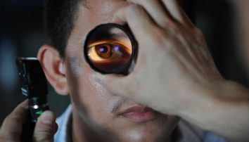 The Differences Between LASIK and PRK Surgery